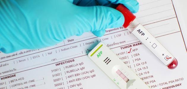 اسعار تحليل دلالات الأورام في مصر 2020