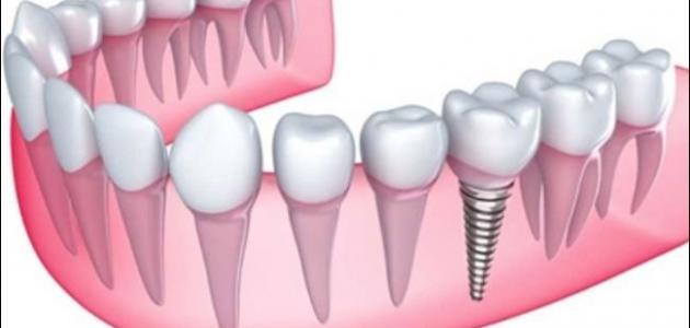 اسعار زراعة الاسنان في مصر 2020