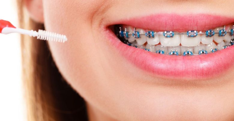 عضلة اصنع رجلا ثلجيا يمكن تجاهلها تقويم اسنان زينه تركيب منزلي Virelaine Org