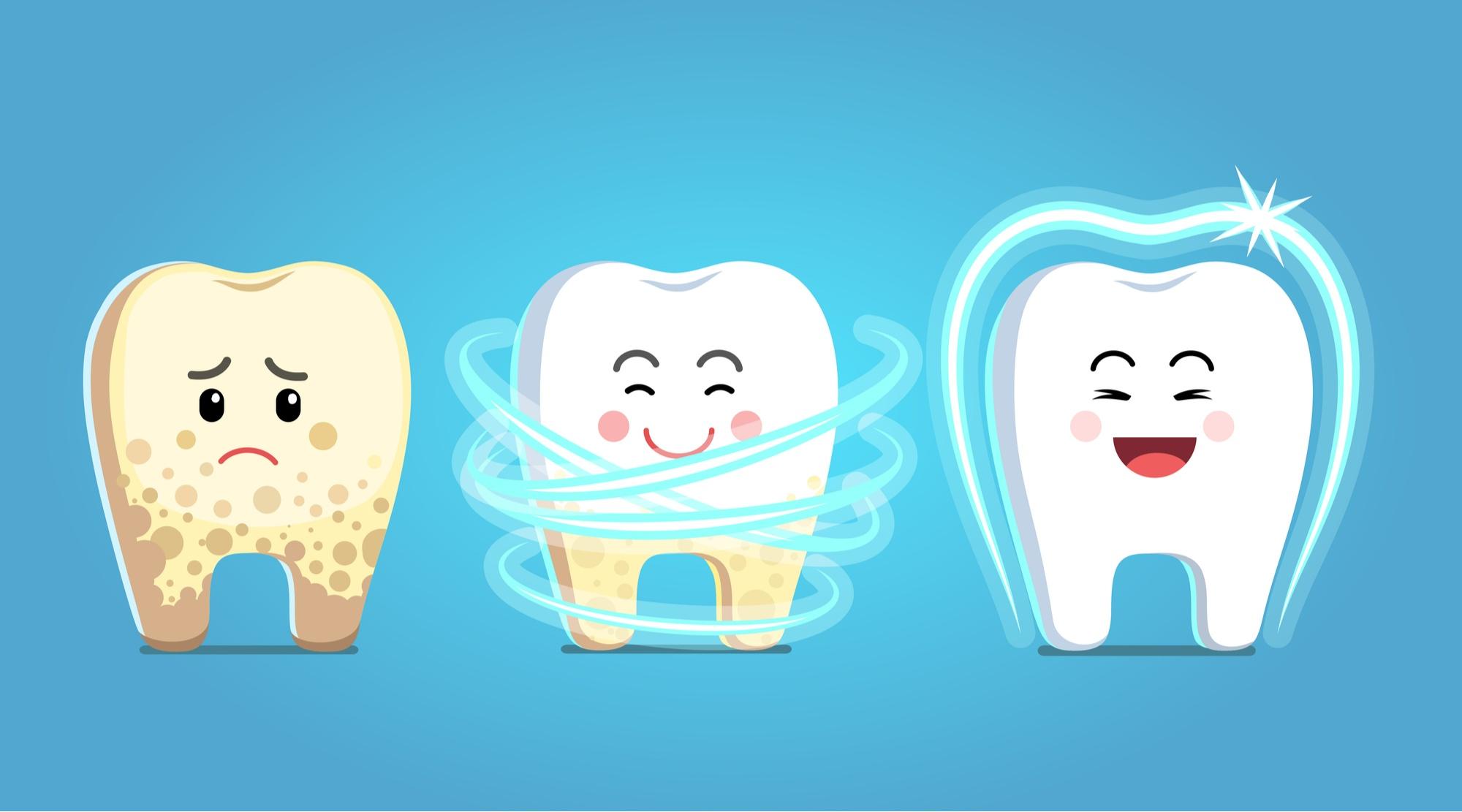 اسعار تنظيف الأسنان من الجير 2020