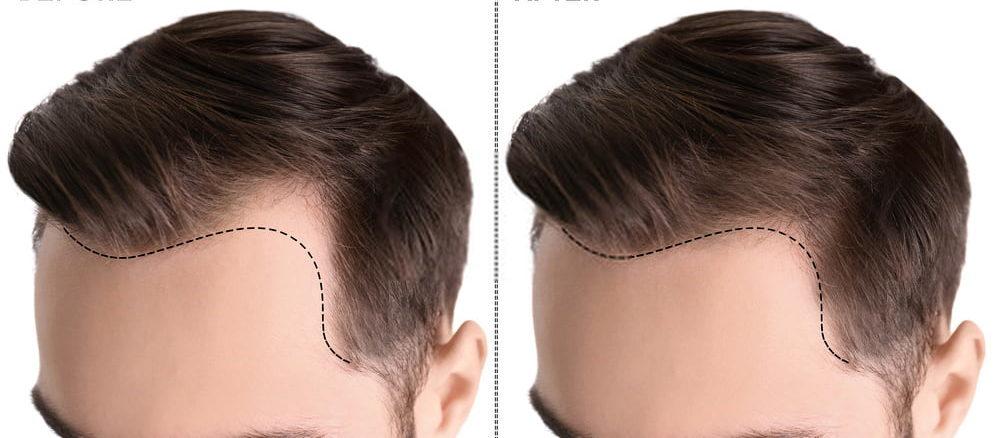 اسعار عمليات زراعة الشعر في مصر 2020