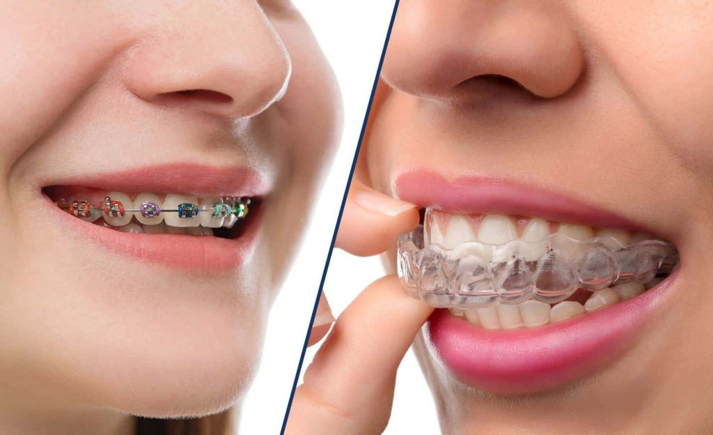 سعر تقويم الاسنان